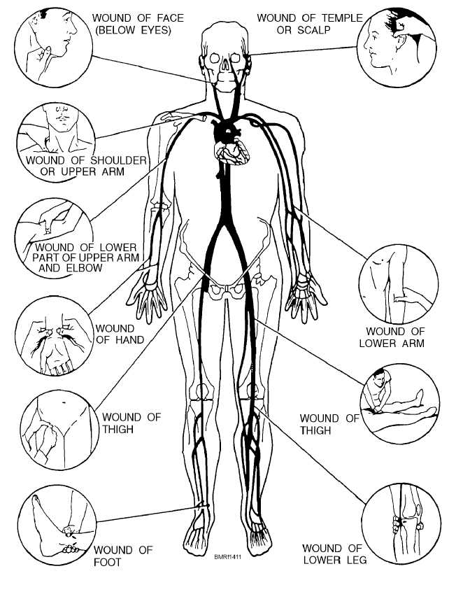 ppct pressure points diagram related keywords